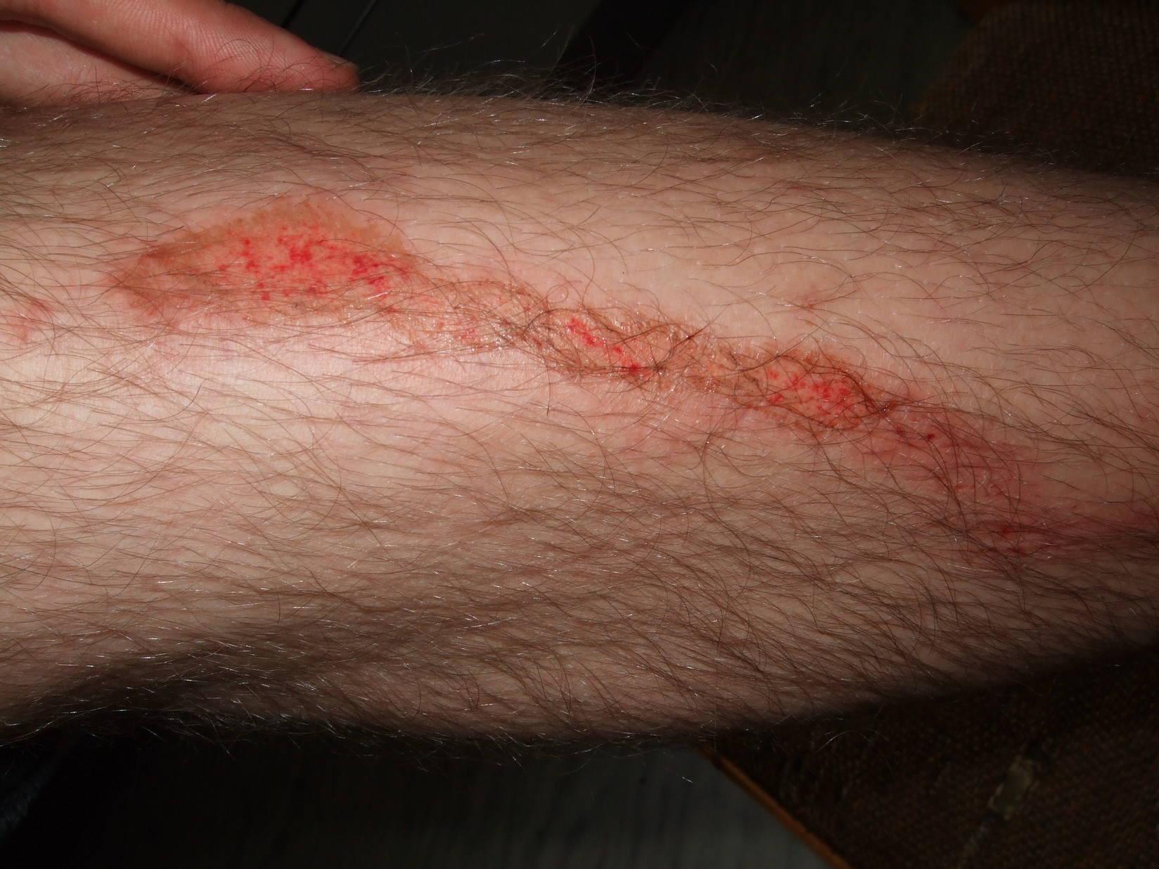 Verletzung Ch. aufgenommen 5 Stunden danach